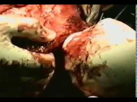 RHABDOMYOSARCOMA  .MUSTAFA ALWARD /د مصطفى الورد/.مستشفى ابن النفيس بغداد