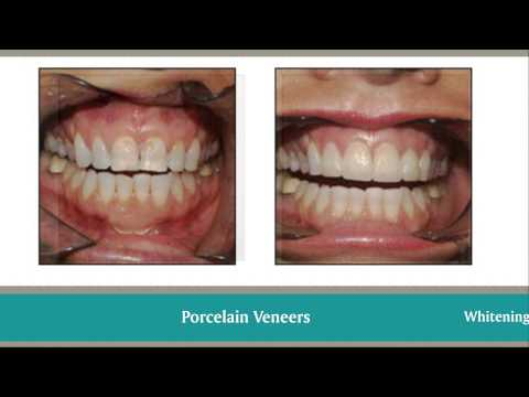 Hollywood FL Dentist | Cosmetic Dentistry in Pembroke Pines