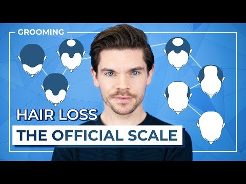 hair-loss:-what-stage-are-you?