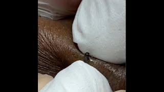 Акне и прыщи Чистка лица и других частей тела Медицина 16 Acne pus face cleaning