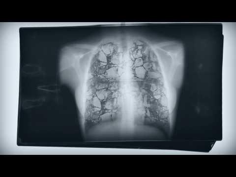 As doenças do amianto: mesotelioma e asbestose