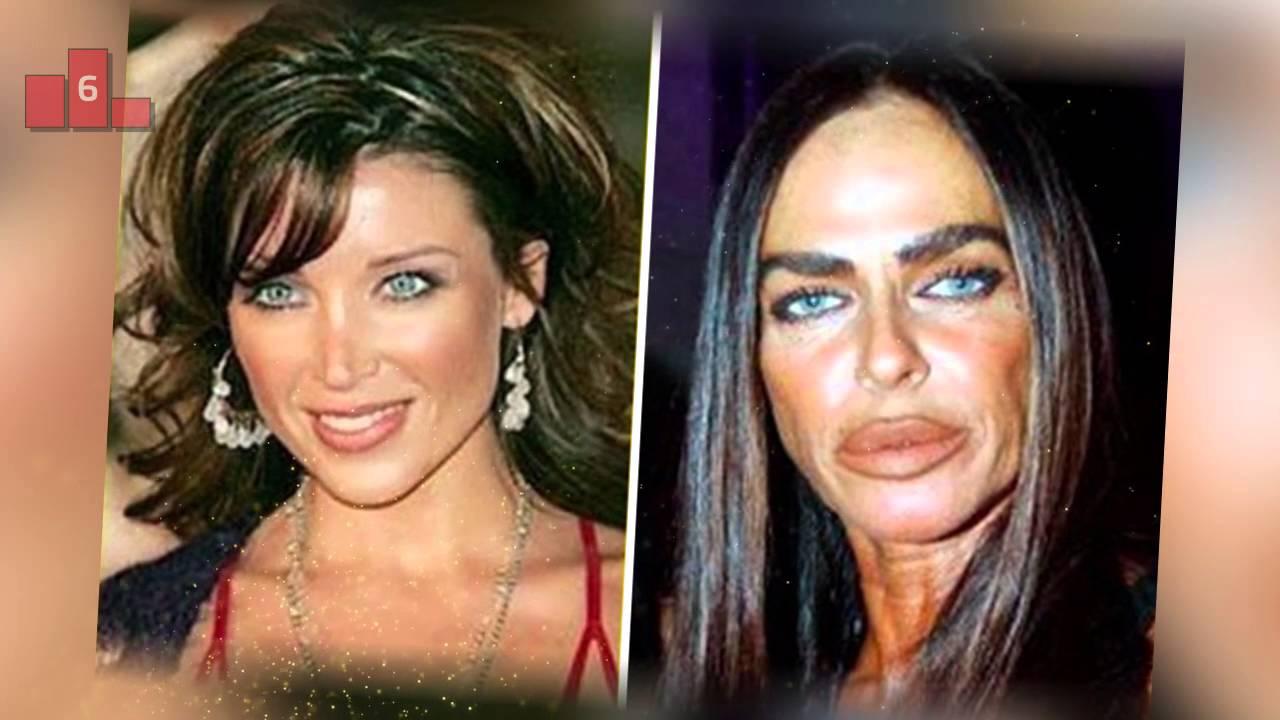 Фото знаменитостей которые делали пластические операции