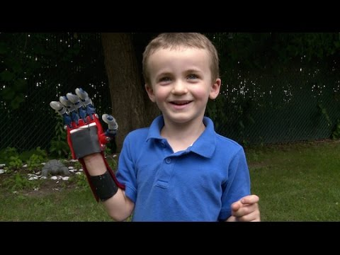 Kid Engineer: 3D-Printed Hand | Design Squad