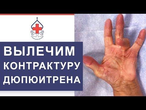 👋 Оперативное лечение заболевания Контрактуры Дюпюитрена. Контрактура Дюпюитрена лечение. 12+