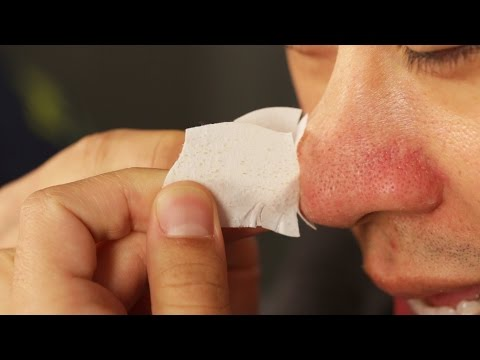 Thumbnail: Guys Remove Their Blackheads