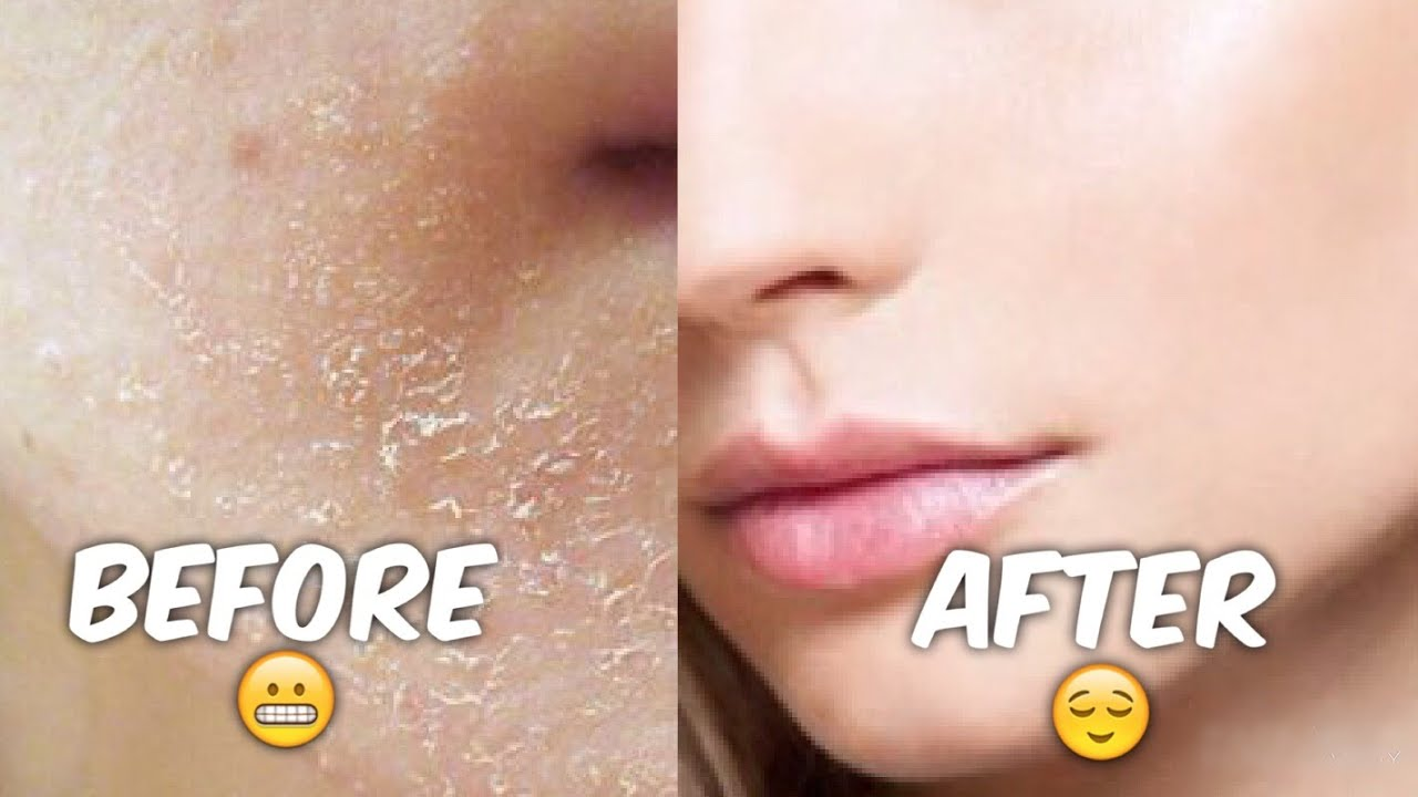 How to get rid of flaky skin  Best Exfoliating Gel  YouTube