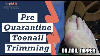 Pre-Quarantine Toenail Trimming - Dr Nail Nipper (2020)