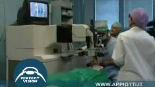 Appiotti.it: Operazione Laser Occhi