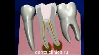 Лечение зубов красивая улыбка протезирование имплантация European Clinic of Aesthetic Dentistry(, 2014-03-25T19:42:55.000Z)