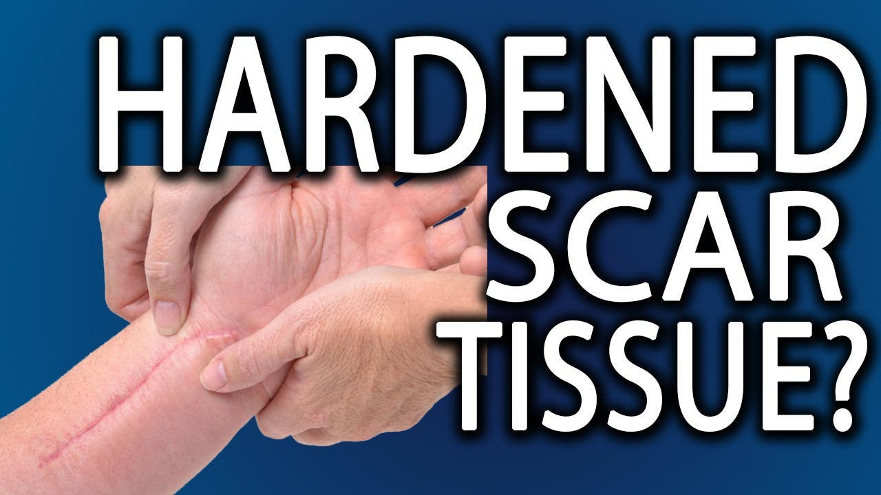 How To Get Rid Of Hardened Scar Tissue Youtube