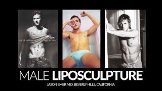 Liposculpture for Men | Liposculpture Before and After | Beverly Hills | Dr. Jason Emer