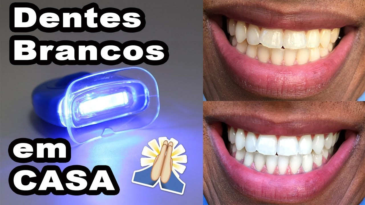 Clareamento Dental Aliexpress Youtube