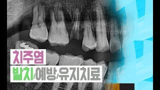 치주염 발치/예방/유지치료에 대해서