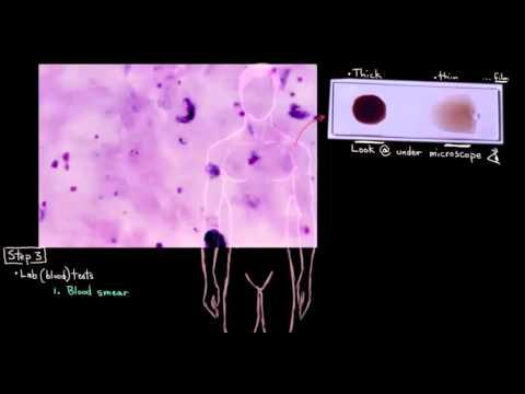 Diagnosing Malaria