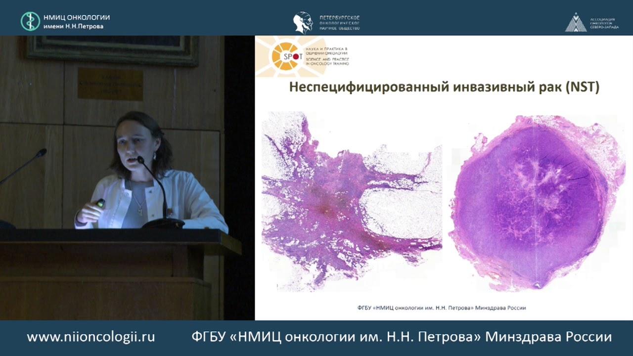 Современная классификация опухолей молочной железы