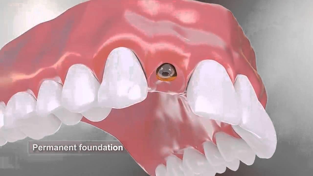 Dental Implants Procedure animation