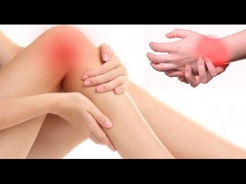 Arthritis o Masakit na Joints- Payo ni Doc Liza Ramoso-Ong #123