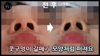 [콧볼축소]  콧구멍이 갈매기 모양처럼 퍼져요
