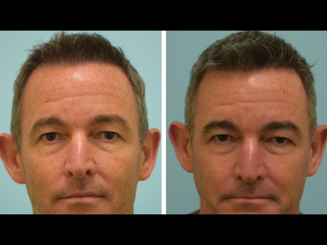 Dallas FUE Hair Transplant Testimonial with Before and After Photos
