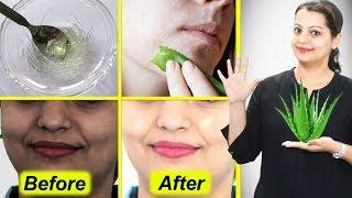 5 Uses of Aloe Vera to Get Fair Skin | एलोवेरा के 5 उपयोग स्किन को गोरा बनाने के लिए