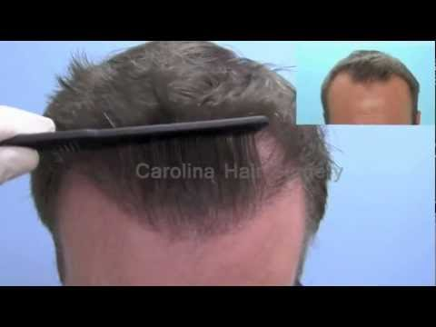 Close Up Hair Transplant Hairlines Achieved with Neograft FUE | Charlotte, Columbia & Charleston