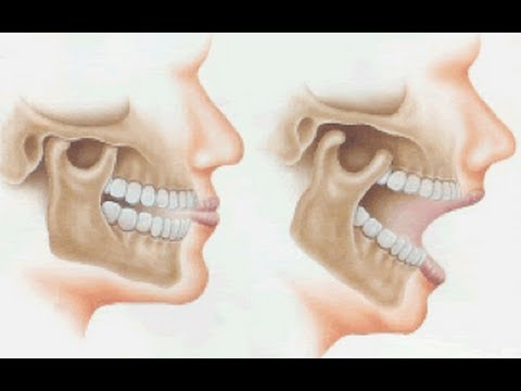 Orthotropic Treatment of Jaw Joint/Temporomandibular Disorder (TMD) by Dr Mike Mew