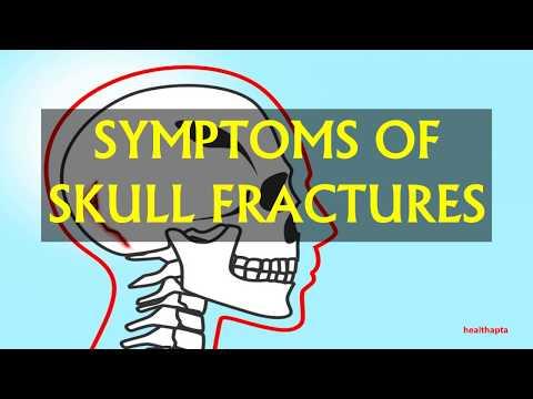 SYMPTOMS OF SKULL FRACTURES