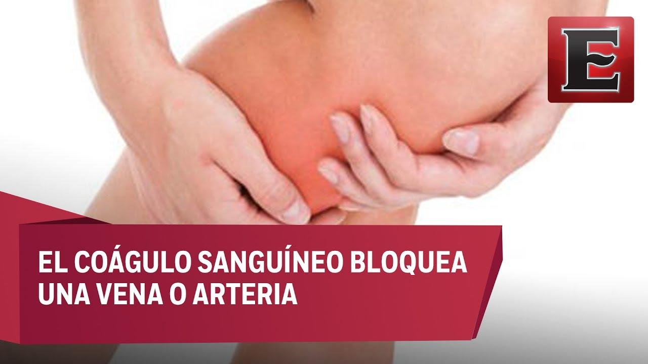 coágulo de sangre que causa dolor en la ingle
