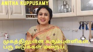 முகத்திலுள்ள கரும்புள்ளிகள் பரு வடுக்கள் மறைய/how to remove black and white heads/Anitha Kuppusamy