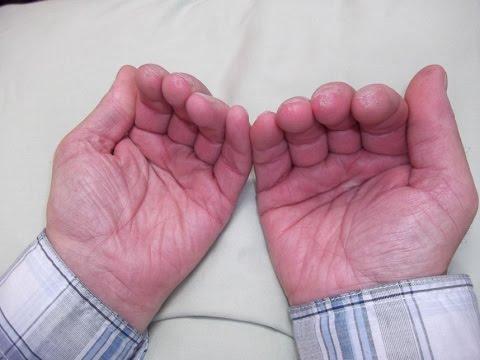 maladie de raynaud doigt