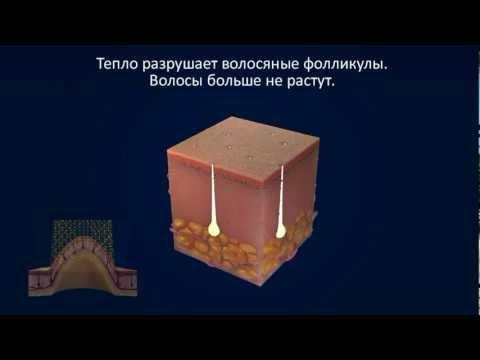 Аппараты СКЭНАР -