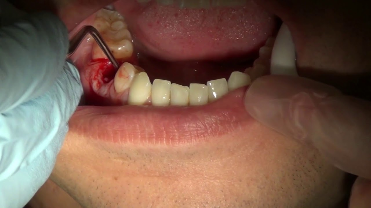 adult Loose tooth in