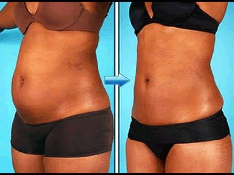 Em um estômago há uma pequena camada de gordura como retirar