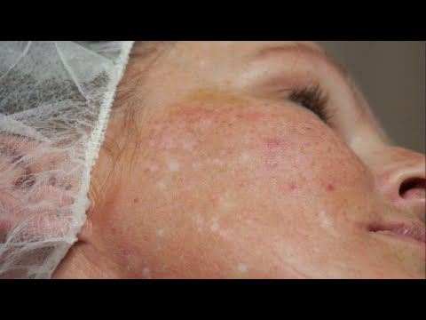 Camouflaging Scars With Micro-pigmentation