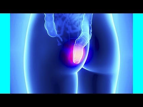 How To Heal Hemorrhoids Naturally Without Surgery