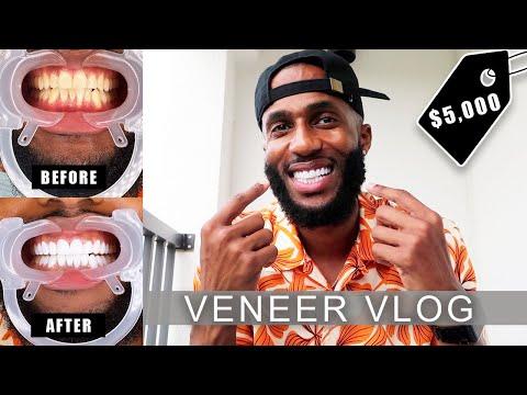 MY $5,000 SMILE TRANSFORMATION! | COMPOSITE-RESIN VENEERS | Vlog #37