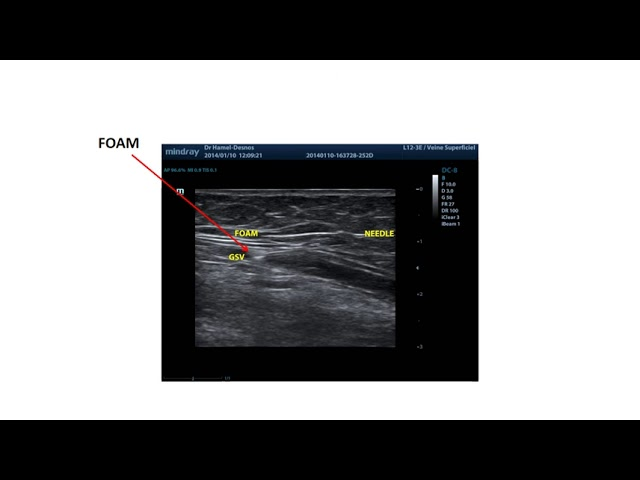 Longitudinal section under ultrasonography for foam sclerotherapy