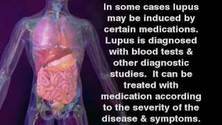 What is Lupus - Lupus Symptoms in women and men