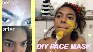 DIY: Face Mask To Get Rid Of Acne! (OVERNIGHT RESULTS)