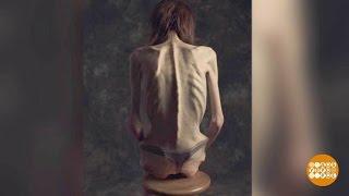 Смертельная анорексия. 29.05.2017