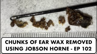 CHUNKS OF EAR WAX REMOVED USING JOBSON HORNE - EP 102