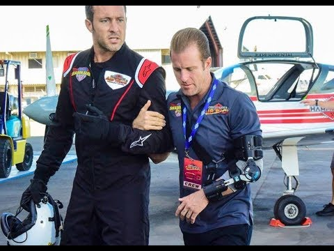 'Hawaii Five 0'  Are Dying to Know What Exactly Happened to Scott Caan's Arm