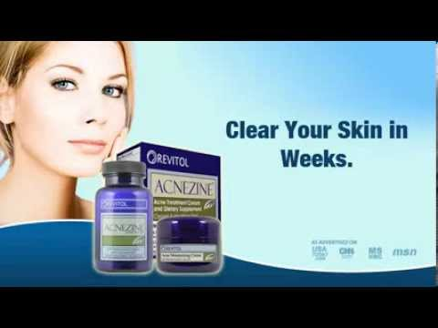 Acnezine Best Acne Skin Care Acnezine Youtube