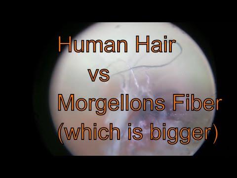 Human Hair vs Morgellons Fibers