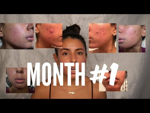 Month #1 Skin Update On Accutane (Side Effects, Products, Progress) | Bryana Jordyn