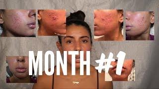 Month #1 Skin Update on Accutane (Side Effects, Products, Progress)   Bryana Jordyn