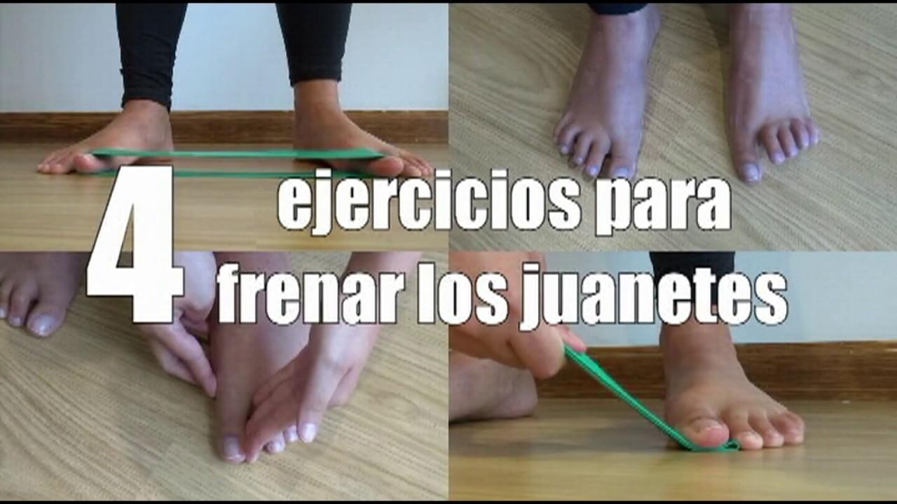 ejercicios para corregir el juanete