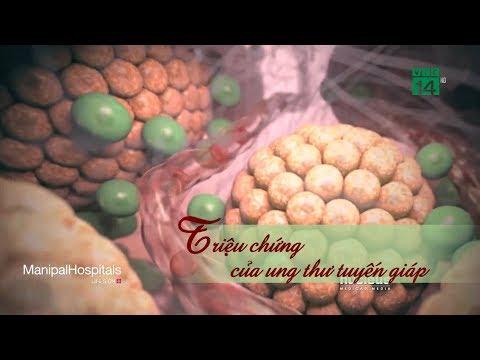 Triệu chứng của ung thư tuyến giáp| VTC14