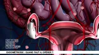 L'Endométriose: Qu'Est Ce Que C'est ?