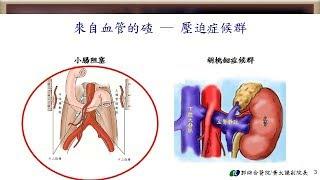 民正新聞記者:蔡永源報導談罕見腸阻塞(上腸繫膜動脈症候群)